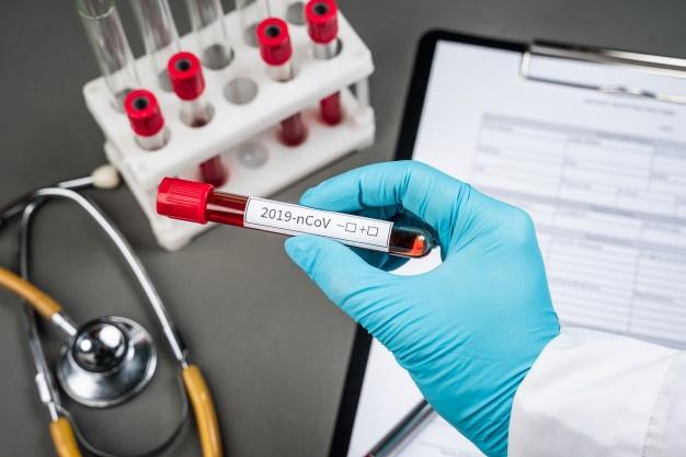 Toscana, Coronavirus: 113 nuovi casi positivi, 1.889 attualmente positivi (+72), 8 in terapiaintensiva