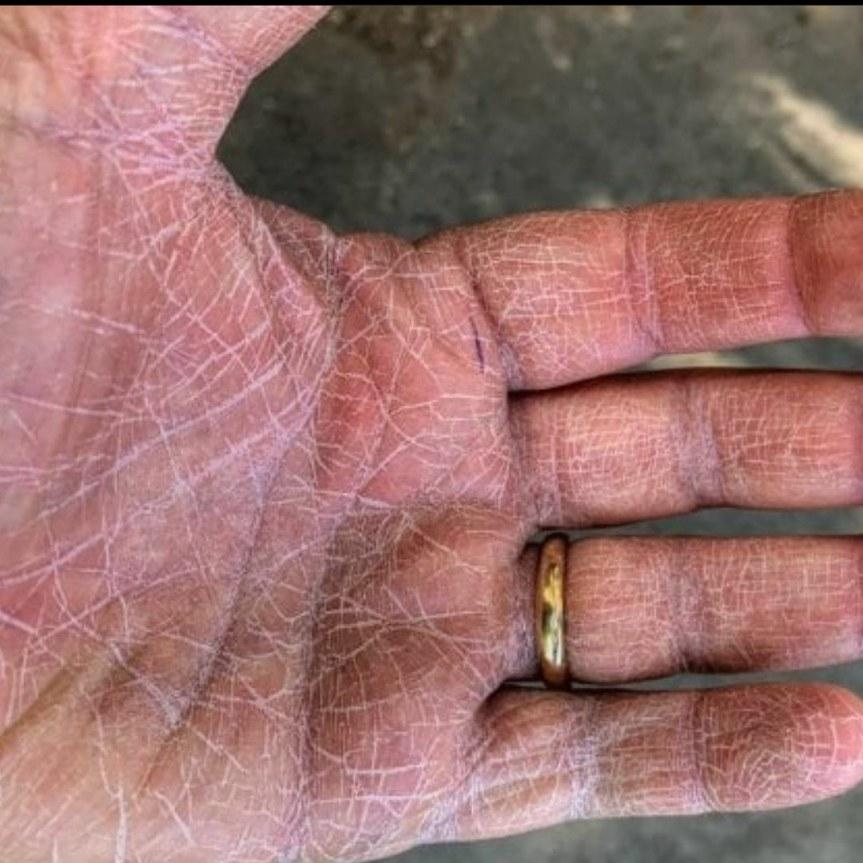 """Siena: Covid, la foto della mano di un anestesista delle Scotte diventa""""virale"""""""